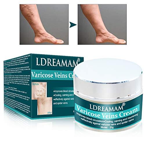 Crema para Varices, Ungüento De Tratamiento De Alivio De Varices, Ayuda natural Calmante Para aliviar las Piernas pesadas con efecto inmediato - Mejora la circulación sanguínea en las piernas